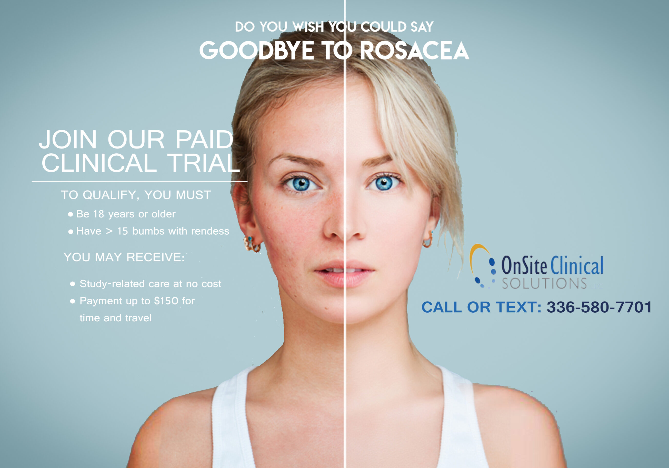 Rosacea Skincare Skin Treatments Beauty Solutions